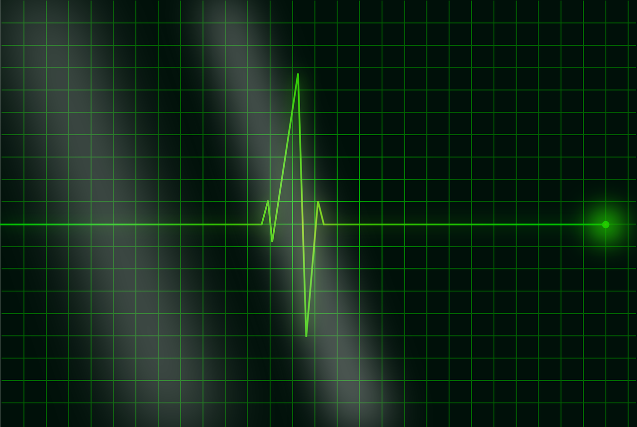 electrocardiogram, ecg, heartbeat